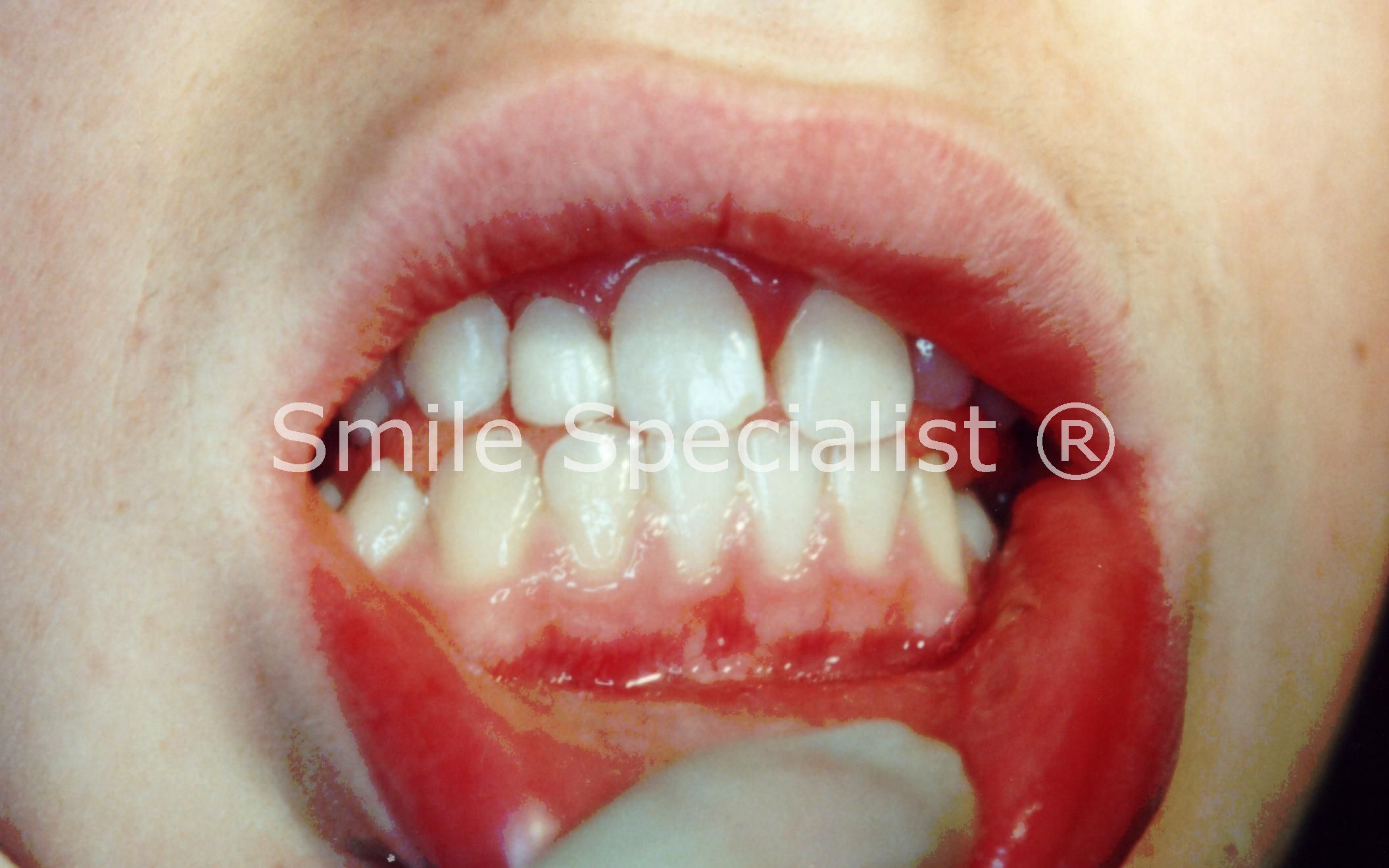 Cosmetic Bonding of Tooth Completed