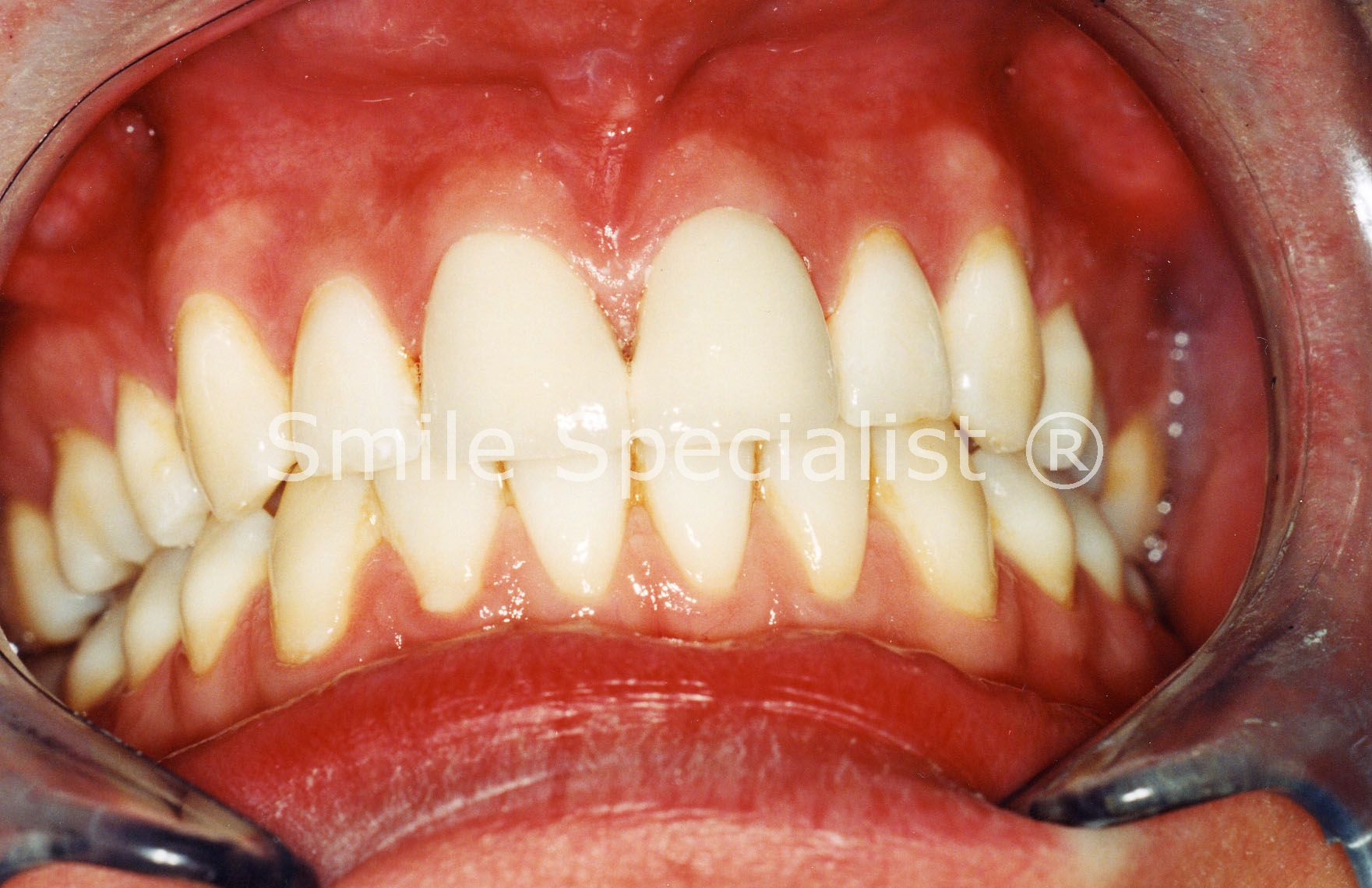 SmileSpecialist Cosmetic Crowns fitted to look Nice and Natural