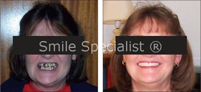 Smile and Face Transformed by Specialist Dr.Kilcoyne