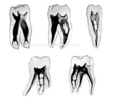 Shows complex root canals in Teeth that need cleaning and filling