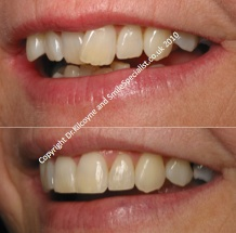 Teeth Straightened rather than Crowned and Bridged as requested