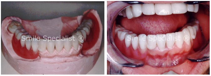 Ceramic Crowns + Cosmetic Denture and Clasps by Dr.Kilcoyne