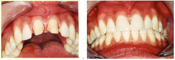 Even minimal drilling still has to remove some good tooth for these Cosmetic Crowns!