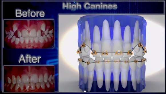 FastBraces brace example Smilespecialist Centre website UK