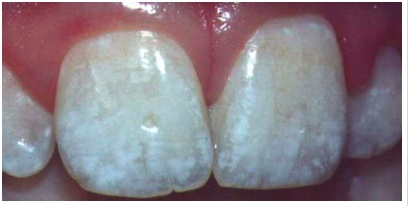 Too much Fluoride can make white specks in teeth, but looks better than decay!