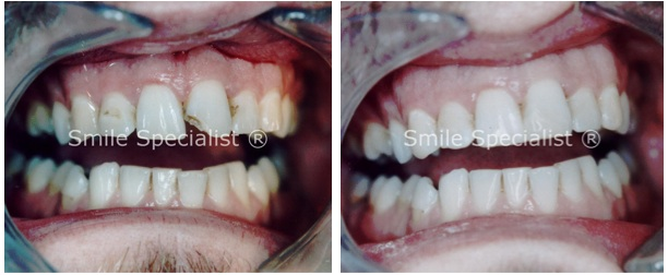 Front Tooth Decay fixed by SmileSpecialist