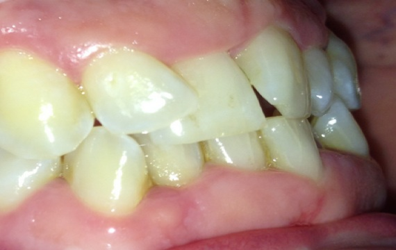 Uneven Teeth and bite right side