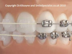 SmileSpecialist offers metal or Ceramic fixed braces