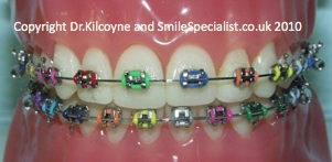 Example of Coloured Elastics to personalise metal braces