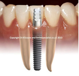 Shows Implant and a crown replacing Missing tooth