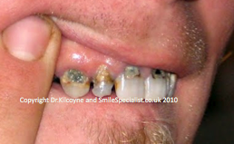 Decay in upper teeth near the gum line
