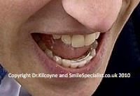 Picture of Lingual retainer glued in behind lower teeth