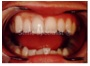 SmileSpecialist Tooth Veneers that look natural