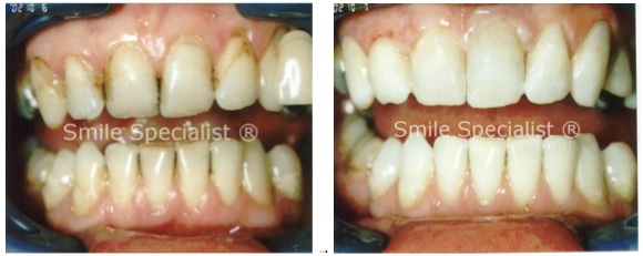 This case still required Whitening and matching cosmetic bonding to improve shape and colour of smile economically